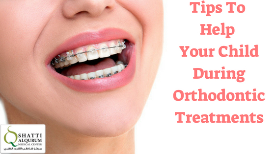Orthodontic Treatments in muscat